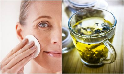 Acne-Free-Challenge: Home Remedies To Get Rid Of Cystic Acne