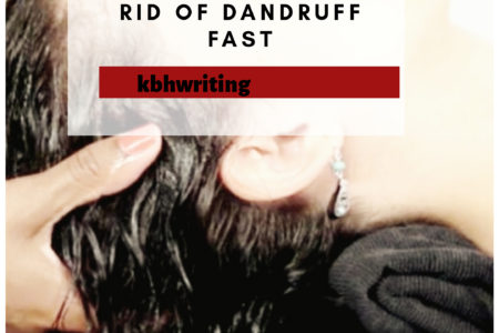 Easiest Ways To Get Rid Of Dandruff Fast