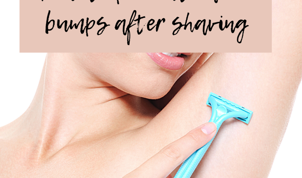 How to prevent razor bumps after shaving