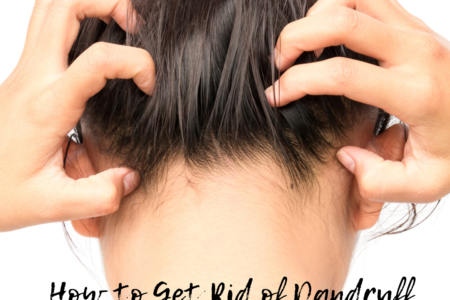 How to Get Rid of Dandruff Fast and Easy